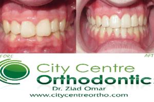 Ziad Omar_Orthodontist